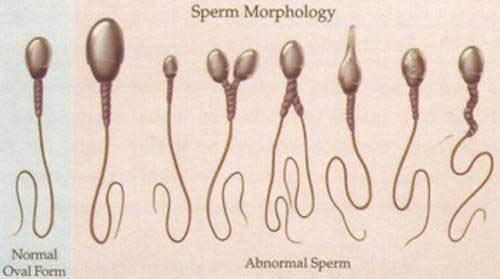 左邊兩條係健康嘅精子,右邊嗰一堆,有畸型嘅。