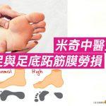 [米奇中醫堂] 扁平足與足底跖筋膜勞損