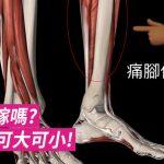 [Sportential 運動潛能] 會出事嫁嗎? 脛骨痛可大可小! (上)
